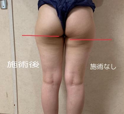 🌸✨4月限定特別クーポン🌸✨ツルツル美尻へ徹底ケア!触ってふわふわコース45分¥2500