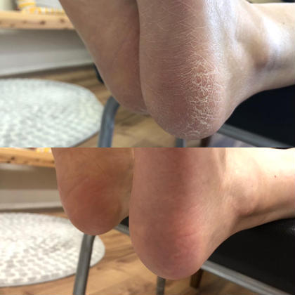 《フットケア》弱酸性化粧品を使ったかかと角質除去✨保湿をしながら3段階のヤスリで丁寧に除去していくので仕上がりがつるつる