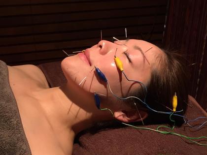 ✨プチ美容鍼 プチ美容灸 [写真モニター様]メニュー✨美容鍼メニューをミニモ特別メニューにて提供中❣️