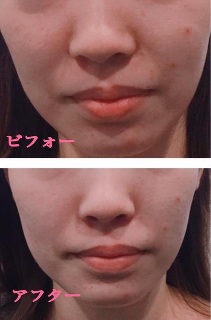 小顔美容矯正モニター1か月後