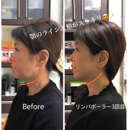 ご新規限定・最新美容!表情筋トレーニングで小顔・リフトアップ  リンパボーラ