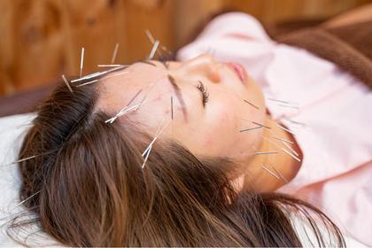 ✨2番人気✨電気を流す美容鍼❣️【ベーシックコース】より高い効果を求めるならこちらがオススメ‼️
