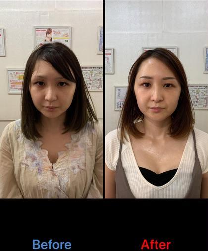 光フェイシャル5回パック  15000円