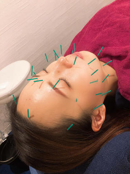 《顔+全身しっかり》美容鍼120分コース