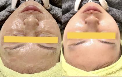 毛穴ケア✨リフトアップフェイシャルパック🌸たるみ、むくみ除去で小顔効果も抜群✨