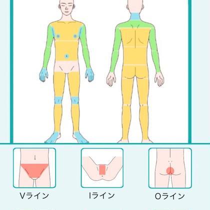 MENS★美肌脱毛★全身+VIO【顔以外全部】