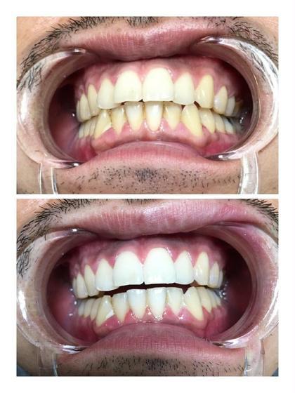 歯のホワイトニング✨✨スタンダード