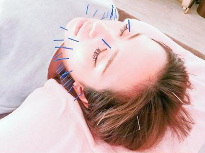 【美顔鍼30本】 ▷美顔鍼30本 ▷炭酸ミスト&小顔マッサージ