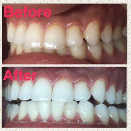 輝く白い歯で笑顔美人度UP❣️歯がキレイになるだけでお顔のイメージは激変します✨