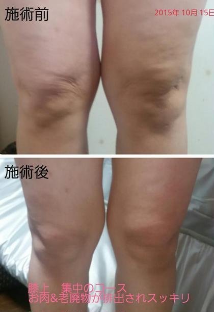 写真 上 施術前   膝回り 老廃物 脂肪が…  写真 下 施術後   たった一回でスッキリ! エステティクサロン  Tiara所属・磯田 美紀のスタイル