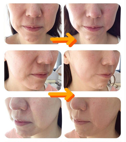 肌再生因子「ヒト幹細胞培養液」使用 年齢肌対策メニュー【最上級エイジングリフトケア】✨