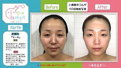 小顔整体研究所〜KSラボ豊田店〜所属・小顔プランナーMayumiのフォト