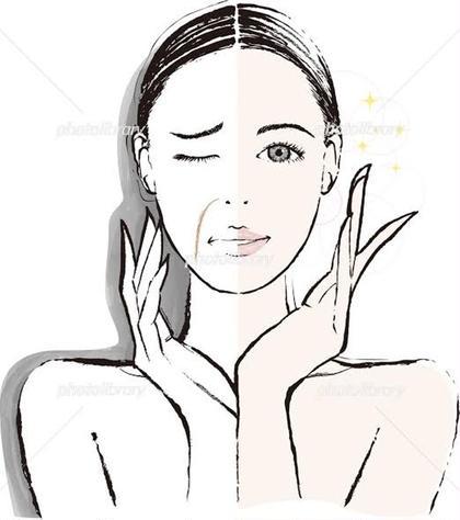 【ほうれい線にアプローチ】美容鍼+電気鍼