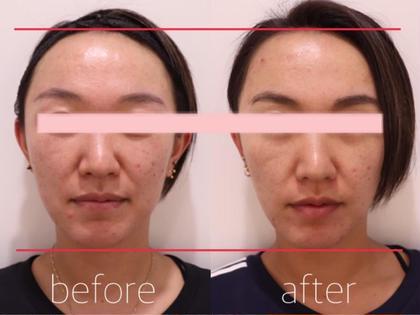 IBE小顔メニューを3回受けられた方のビフォーアフター写真です。今でも継続してリピートされています。 BEAUTY GYM BEHAING 柏店(ビハイング)所属・BEAUTYGYMBEHAINGのフォト