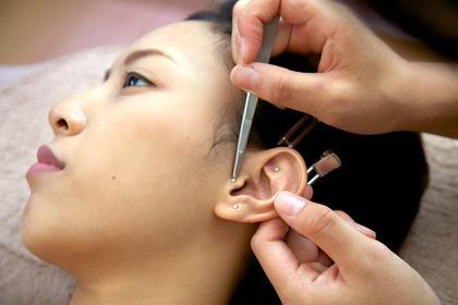 体質改善耳つぼ👂💕自律神経ホルモンバランスを整え、ダイエット花粉症不眠症冷え性にも👌