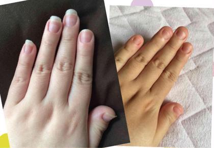 私の爪です! 深爪ネイリスト〜s.nail〜所属・I.SHOKOのフォト