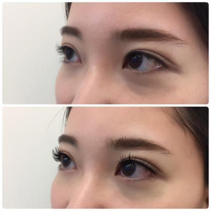 アップワードラッシュ 上)before  下)after  eyelash所属・EyelashSalonのフォト