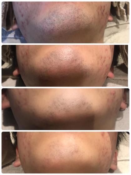 施術前→1回目施術後→2回目施術後→3回目施術後  1番下の写真はシェービングしてから3日後です! 自己処理の回数が大幅に減り、カミソリによる肌トラブルも少なくなっています✨
