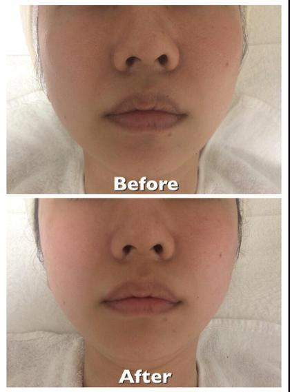修正無しの同じライトですが、撮影は難しい・・・。しかし、肌の艶や透明感がアップし、毛穴も目立ちにくくなりました☺顔左側が少し下がりぎみでしたが、リフトアップしてバランスが整いました唇も血行がよくなり乾燥が軽減したことで、色味の良い唇に   ミヤマアヤコ所属・ミヤマ アヤコのフォト