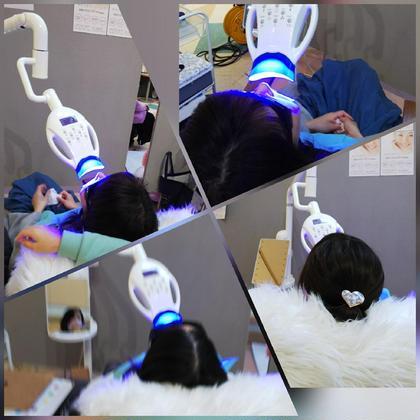 歯のセルフホワイトニング  プレミアムプラン45