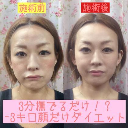 痛くない小顔矯正&頭蓋骨調整 効果持続のセルフケアレッスン付き(初回のみ)