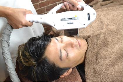 MEN'S限定 ヒゲALL 最新脱毛(SHR)初回限定最新脱毛による施術で行います!