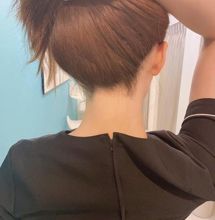 ✨【女性脱毛】追われる後ろ姿へ😌💖背中+うなじ+脇 脱毛!✨