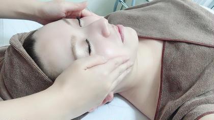 大人気👍フェイシャル美肌脱毛(目元以外)💖 ヒト幹細胞配合パックでお肌ツルツル🥰