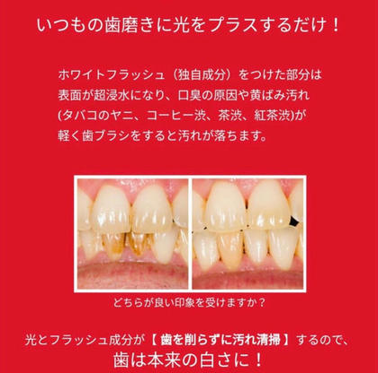 """歯磨き粉 """"ホワイトフラッシュ"""" before&after WHITE BEAUTE (ホワイトボーテ)千葉店所属・WHITEBEAUTEのスタイル"""