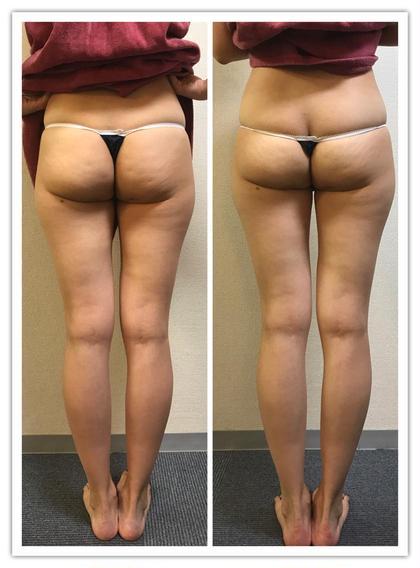 もともと細い方ですが  引き締め効果のある METと言う勝山オリジナルの 痩身技術を加えた結果です! たった一回でここまで変化します。  太ももの横幅や膝周りがどうしても取れない方 他にも方法があることを是非ご体験お待ちしております!  モニター価格は変更になる可能性があります。  ご予約はお早めに〜!!!  尚 効果の定着には 継続的に行う必要があります。 dozenrosebyminori所属・佐藤美智枝のフォト