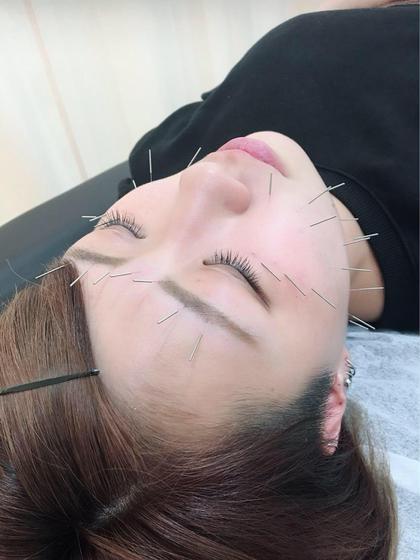 【超稀少】韓国式美顔鍼(高麗鍼)+首回りマッサージ👍