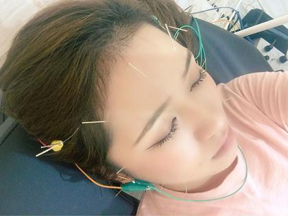 リフトアップ間違いなし美顔鍼(電気鍼)+首調整🥰