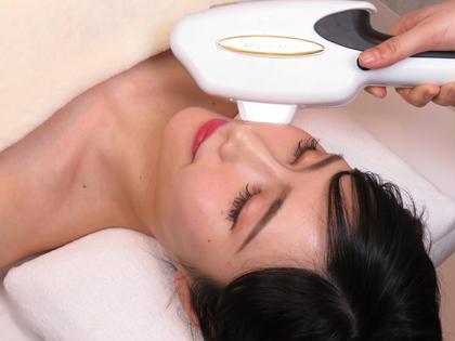 ✨【肌質改善 フェイシャル】フォトRFでお肌のコンプレックスを徹底的に改善!角質汚れもツルっと、毛穴洗浄付き✨