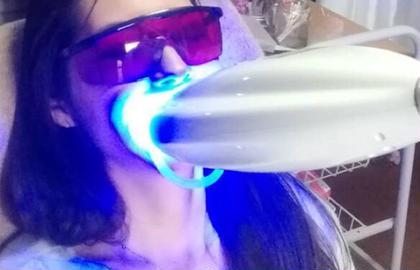 セルフホワイトニング😬 業界NO.1🏆痛くない国産、高品質 歯医者さんも愛用🦷肌に優しい❣️  8分間2回放射