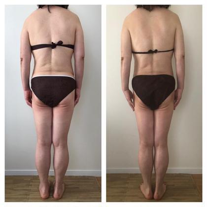 【5月末まで限定】新生活応援🌸姿勢矯正20分×上半身リンパor下半身リンパ30分