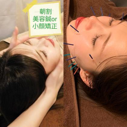 朝割🕺平日10時~12時限定🕙 美容鍼 or 小顔矯正