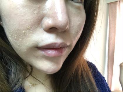 頬と鼻は剥離し終えてます。 剥離の様子を。全体写真です。 私は皮膚が薄いのですが厚めに剥けました(^。^) airavu〜アイラヴ〜所属・ハーブピーリング&脱毛 airavuのフォト
