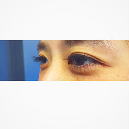 Jカール 11mm 120本 ナチュラル ミンクスタイル所属・ミンクスタイル駒沢店のフォト