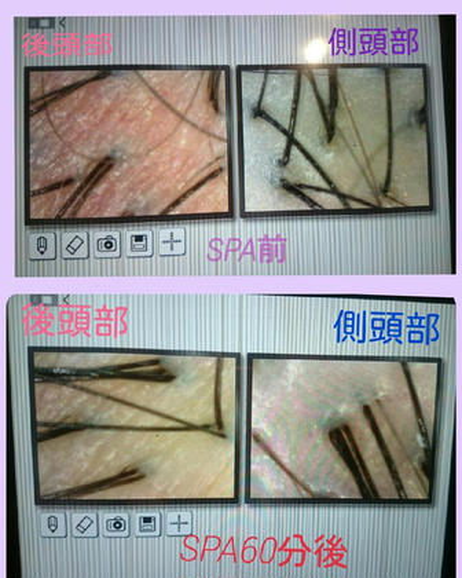 ヘッドスパ前とヘッドスパ後です。老廃物が流れているので、頭皮の色もかなりの変化があります☆ MODE  K's尼崎所属・鶴田望美のスタイル
