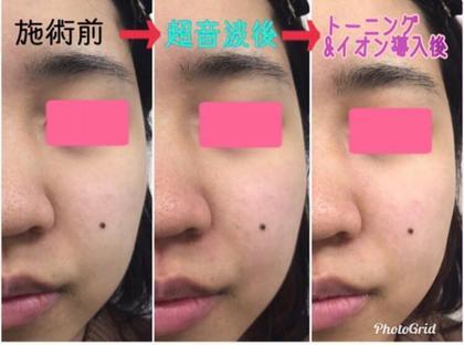 FacialStylistSalon池袋所属の鈴木涼子のエステ・リラクカタログ