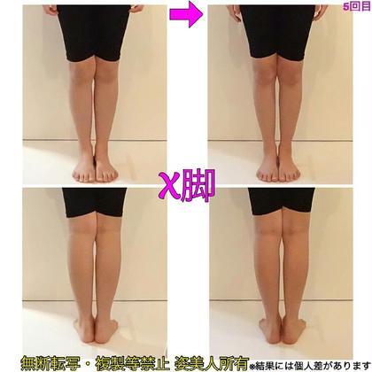 X脚/ゆがみ/バランス/美脚/ふくらはぎのハリ/全身90分 姿美人.「肩こり・小顔専門」所属・美骨 ×筋膜リリースのスタイル
