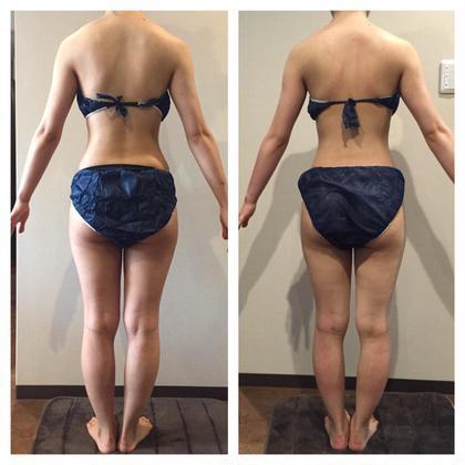 たった3回でこの結果✨ 肩周りの厚み、腰周りの厚みがスッキリ!! ヒップアップすることで太もももスッキリしています♡   シュールサエラ所属・Sur-Caetlahitomiのフォト