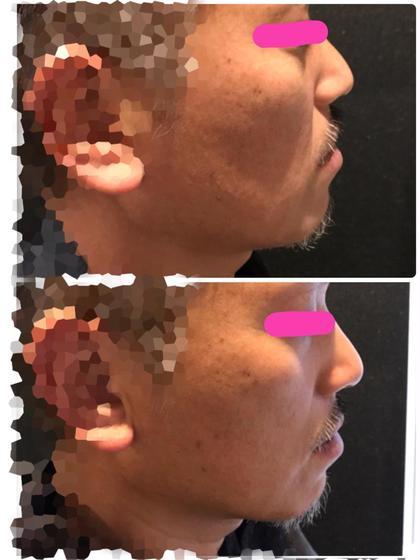 最新リフトアップ小顔美容機器③⑤⓪⓪shot❣️ハイドロピーリング