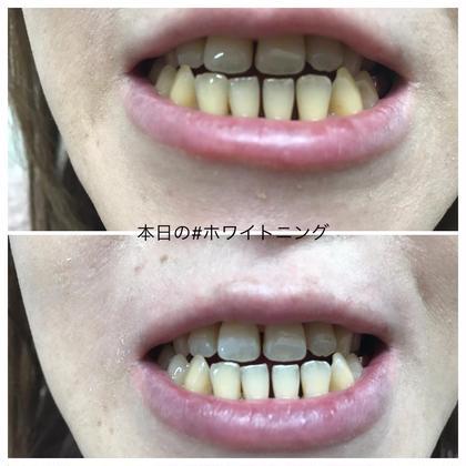 🦷歯のホワイトニング🦷