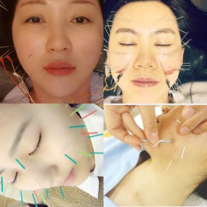 美容針(小じわ、たるみ、くぼみ、むくみ、目の下のクマを軽減、顔のくすみ、顔色を改善させ、輝きを取り戻す)免疫の改善