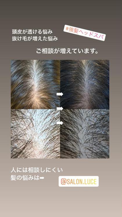 『頭皮のスキンケア』薄毛・抜け毛・円形脱毛などの髪の悩みに強髪ヘッドスパ✨