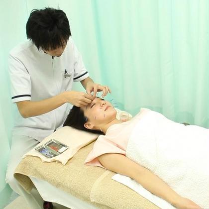 美容鍼の様子 イスクラ鍼灸指圧治療院所属・村川 陽一のフォト