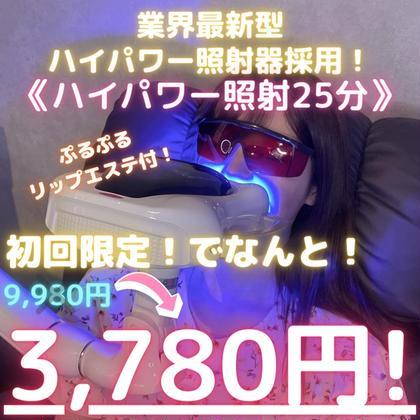 【NO.1人気】ハイパワー照射セルフホワイトニング(25分)