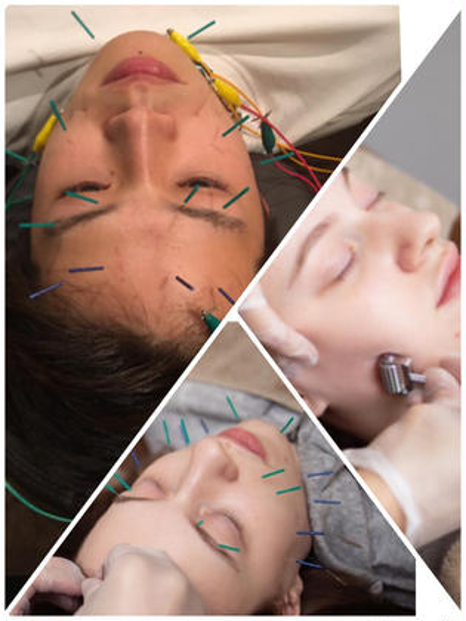 小顔コース🦔美顔鍼30本以上+微弱電流✨+小顔矯正+カッサ+首もみほぐし+ローラー鍼