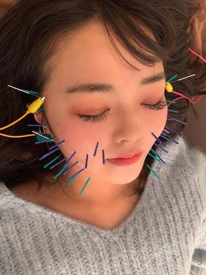 美容鍼50本メニュー 電気つき✨